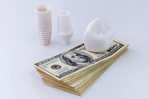 dental implant and money