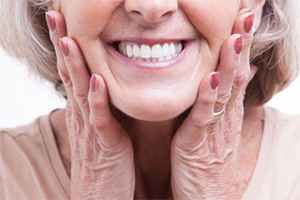 Smiling face thanks to dental implants