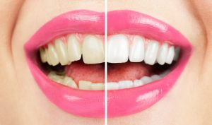 Custom-fitted whitening trays ensure accurate application of gel.