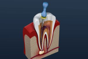 Model of root canal treating infected tooth